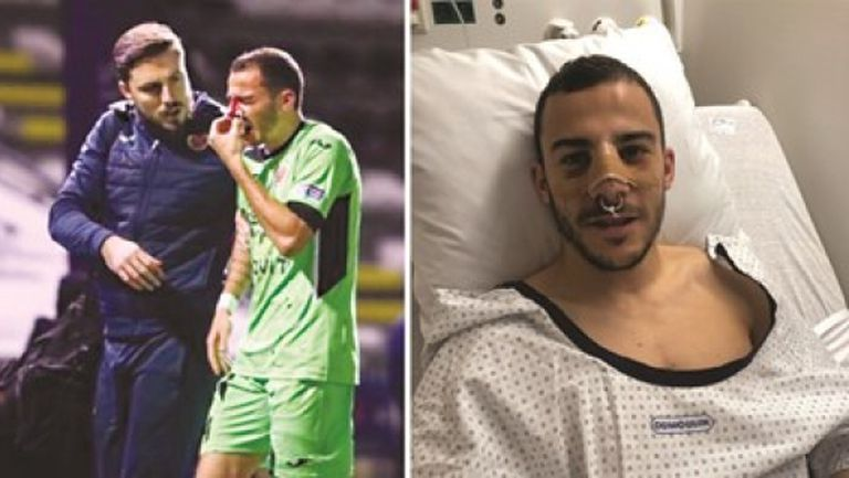 Оперираха Едисон Йорданов заради счупен нос след тежък сблъсък