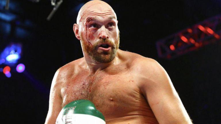 Тайсън Фюри: Ако спра с бокса, ще се пропия