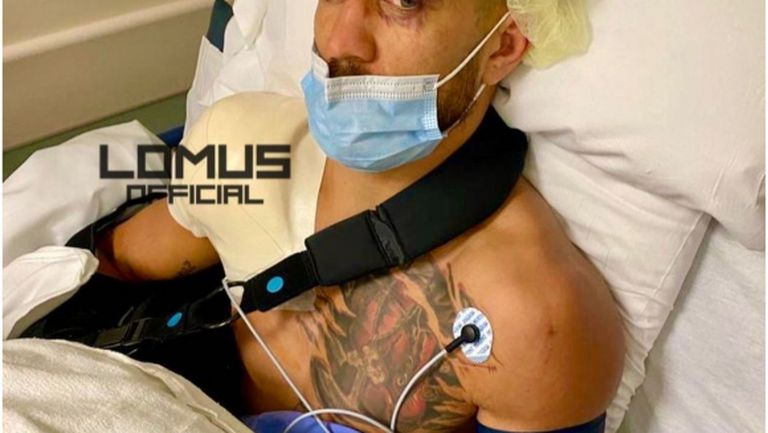 Ломаченко показа белезите след операцията (видео)