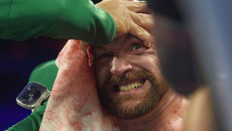 Тайсън Фюри провери как е в UFC (видео)