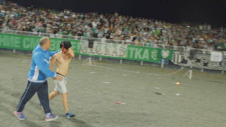 Изведоха фен на Черно море със счупена глава на мача с Левски