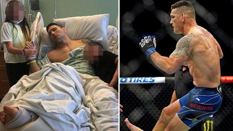 Крис Уайдман: Има опасност от ампутация на крака ми
