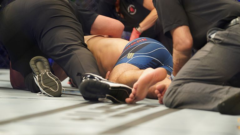Крис Уайдман счупи крака си по брутален начин на UFC 261